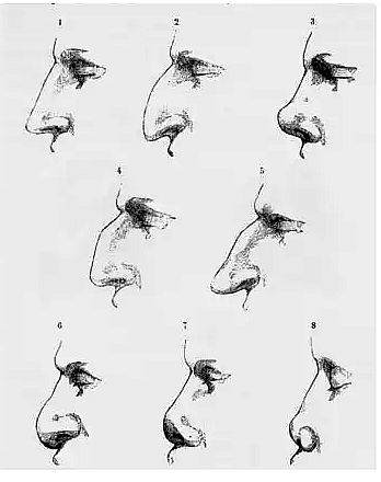 Risely nose Index